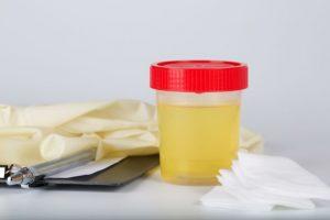 زيادة مستوى الكيتونات في البول من اعراض الكيتو