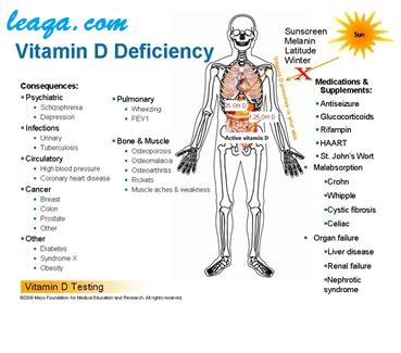 نقص فيتامين د يؤثر على معظم أجزاء الجسم