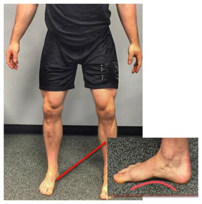 وضع باطن القدم في تمرين السكوات