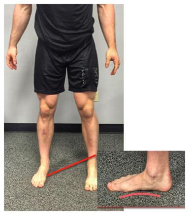وضع خاطئ لباطن القدم في تمارين القرفصاء