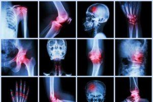 صورة بعض الالتهابات التي تصيب الجسم